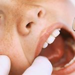 Top Questions About Early Orthodontic Evaluation